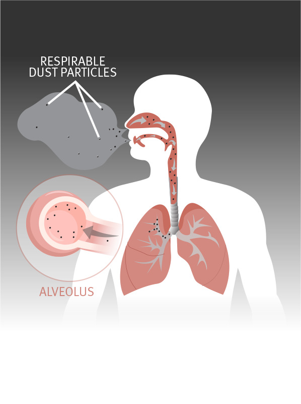 respirable dust particles being inhaled and entering alveoli