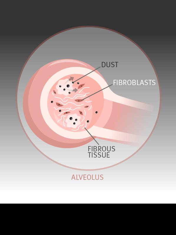 fibroblasts producing fibrous tissue