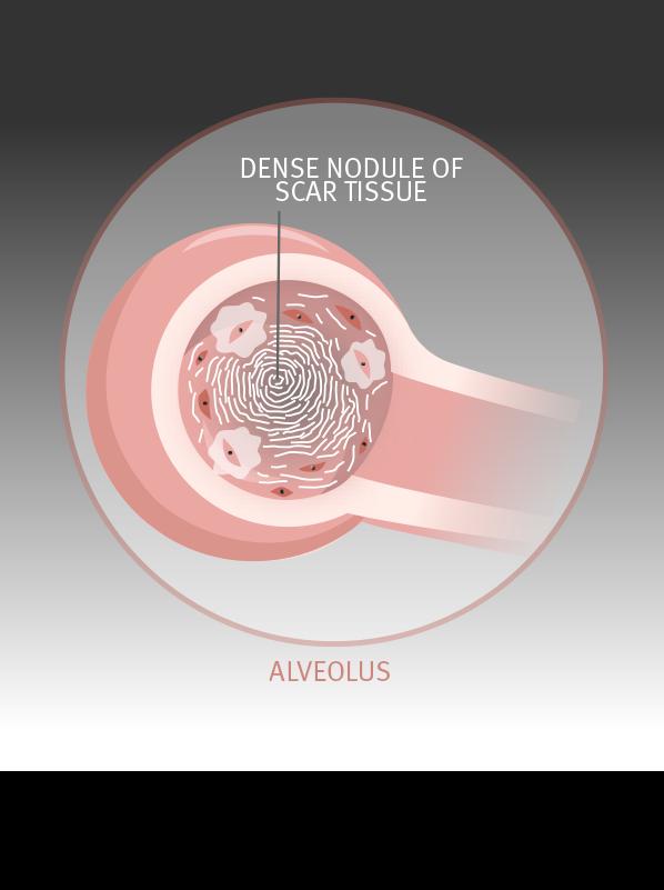 dense nodules of scar tissue form